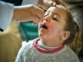 مصر اليوم - أعراض ضمور العصب البصري عند الرضع