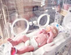 مصر اليوم - ولادة طفل بحالة وراثية نادرة تمنعه حتى من البكاء