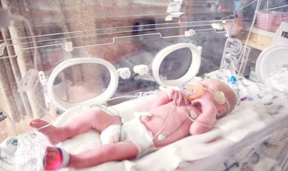 مصر اليوم - أطباء يكتشفون سر تلف الدماغ لدى الأطفال الخدّج