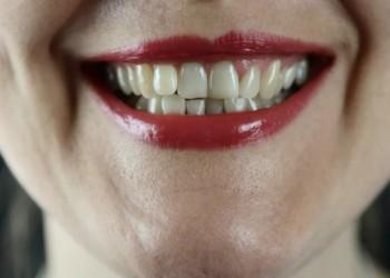مصر اليوم - علاج لفقر الدم يمنح أملاً في القضاء على تسوس الأسنان