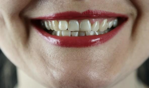 مصر اليوم - تطوير علاج عن طريق الفم لكورونا ينتظر الموافقة عليه